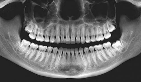 dental-x-rays-626x313
